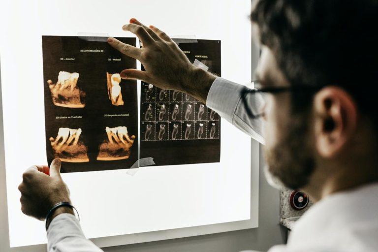 Dlaczego warto stosować implanty zębów?